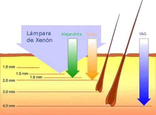 Tipo de depilación láser